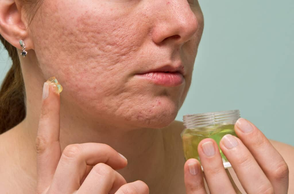 natural products for acne scars